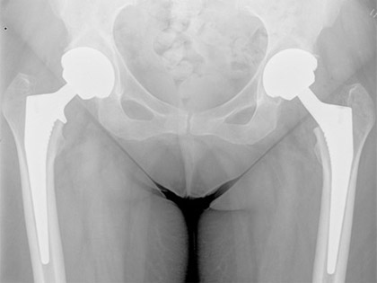Uncemented Primary Hip Replacement